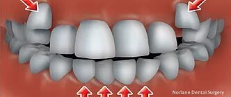 cheap orthodontics treatment hoppers crossing