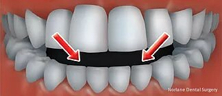 top rated orthodontics treatment hoppers crossing