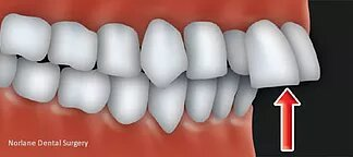 best orthodontics treatment