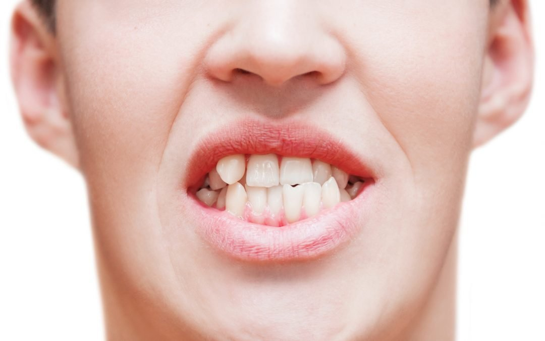 Dental Tips: How Can Orthodontic Fix Crooked Teeth?