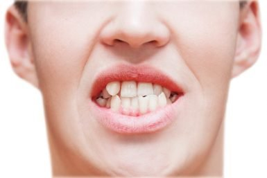 Hoppers Crossing Dentist Tips: How Can Orthodontic Fix Crooked Teeth?