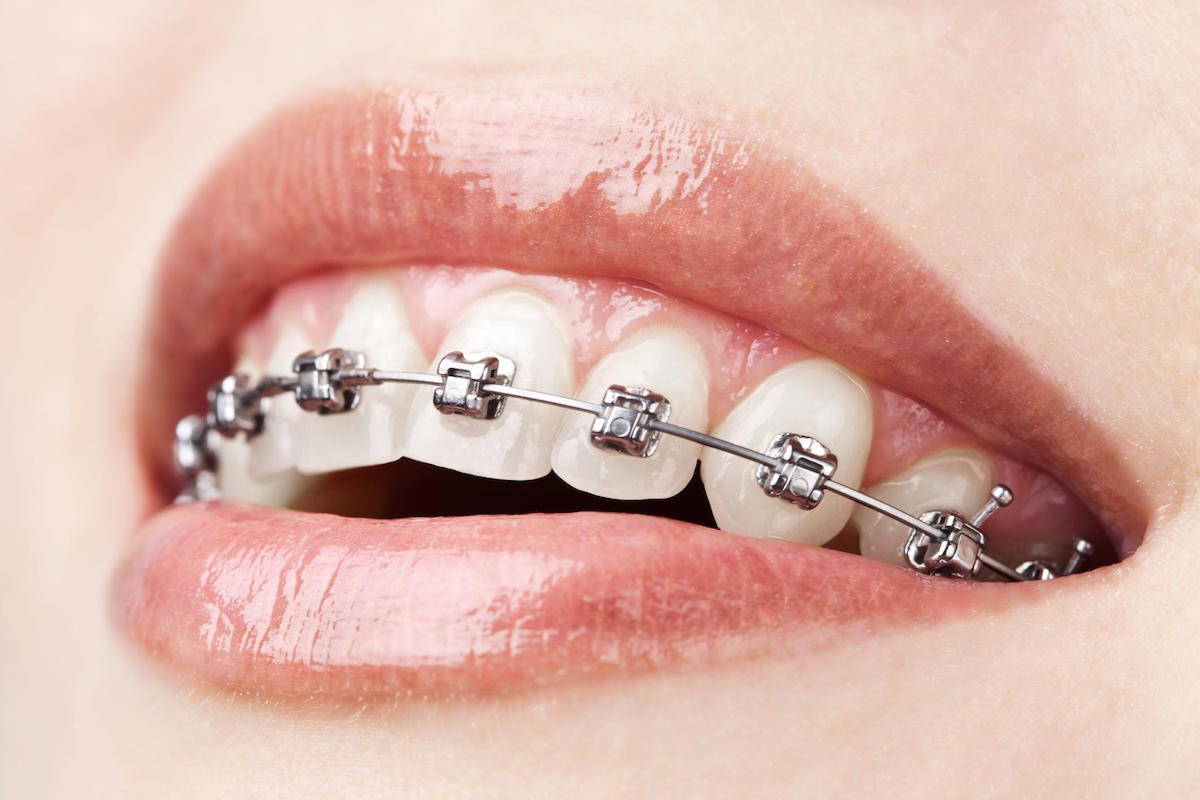 cheap orthodontics treatment in hoppers crossing