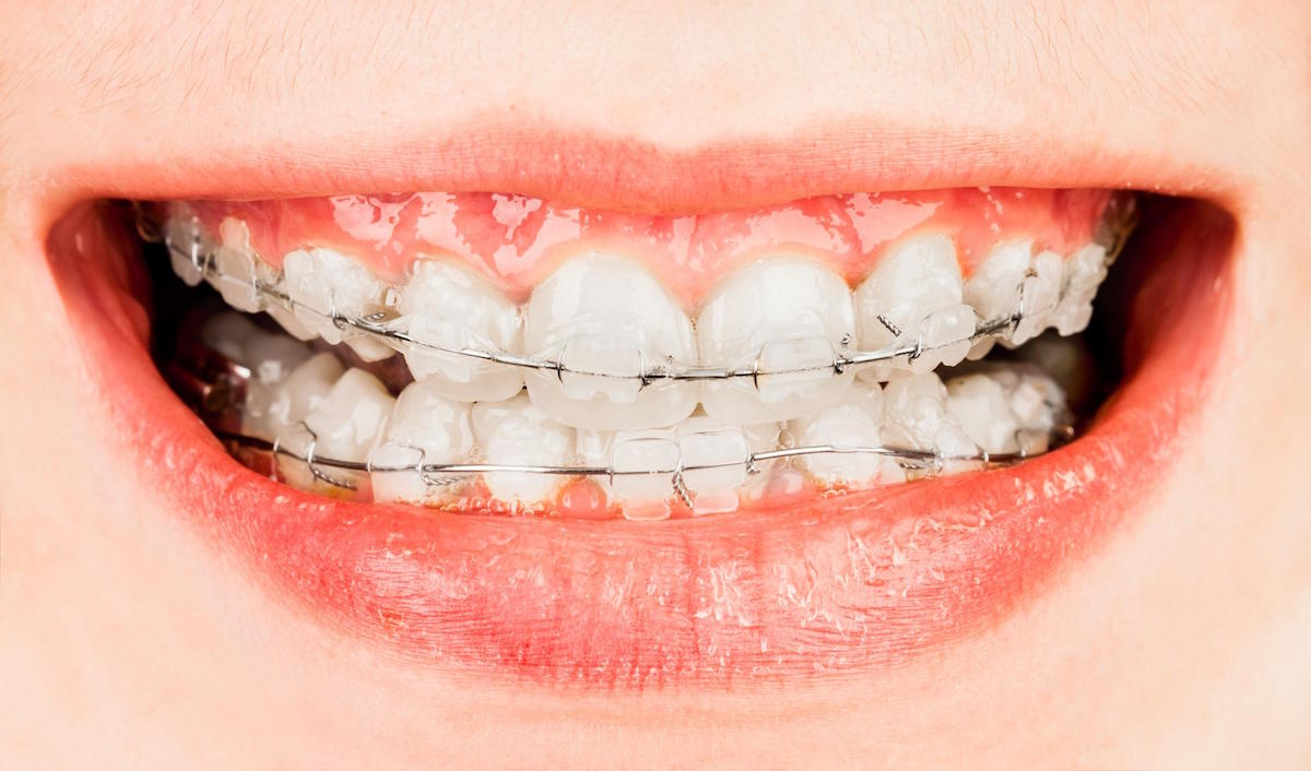best orthodontics treatment in hoppers crossing