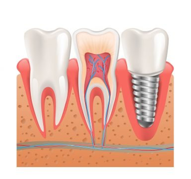 Hoppers Crossing Dentist Tips on Dental Implants Should You Shop Around