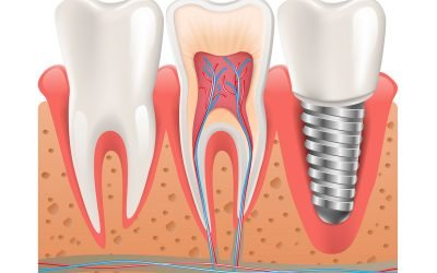 Hoppers Crossing Dentist Tips on Dental Implants: Should You Shop Around?