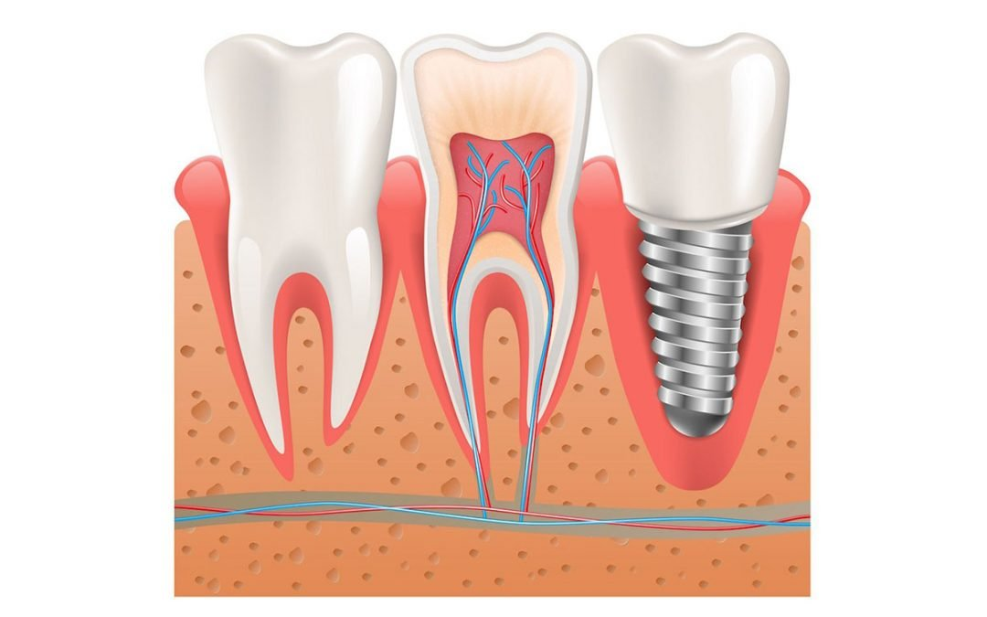 Dental Tips on Dental Implants: Should You Shop Around?