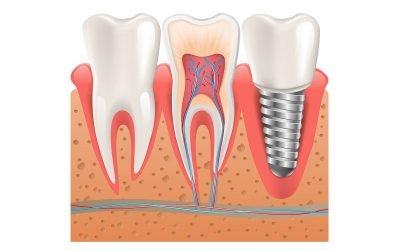 Dental Tips on Dental Implants: Should You Shop Around?