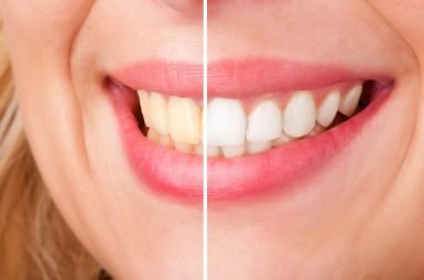 over-the-counter vs professional teeth whitening hoppers crossing