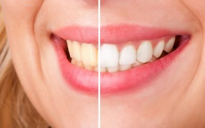 Hoppers Crossing Dentist Tips: Over-the-Counter vs Professional Teeth Whitening