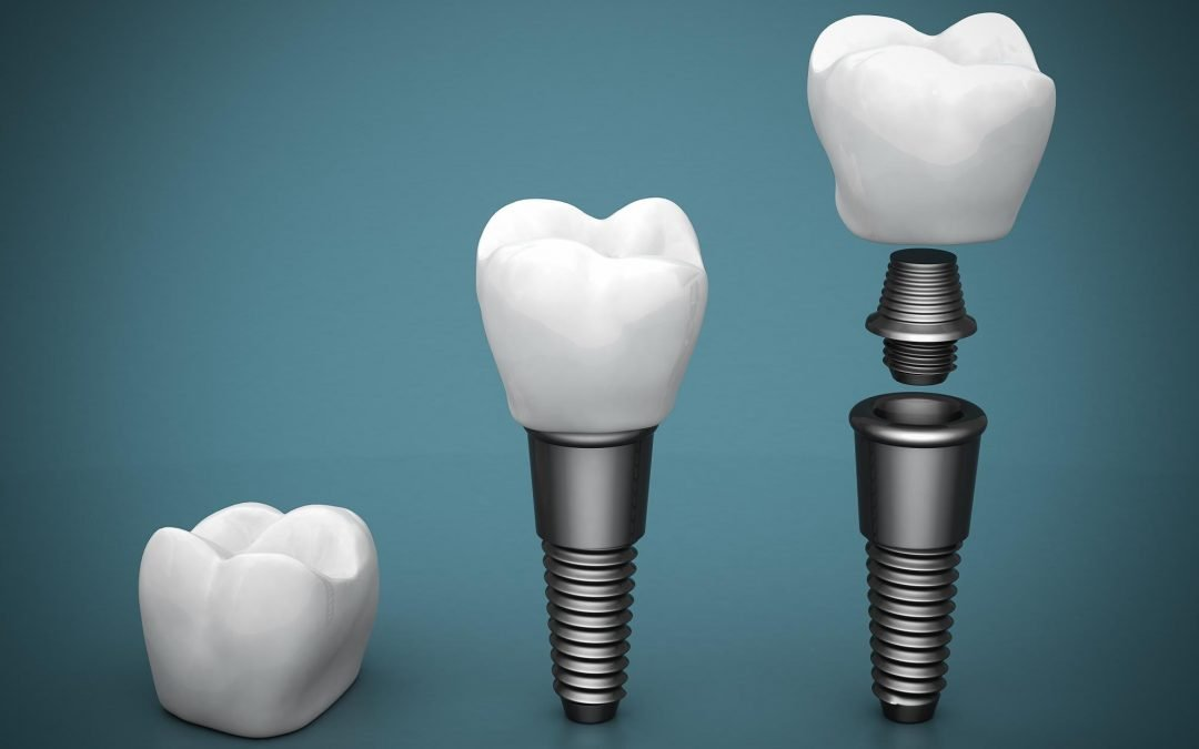 Are dental implants the long-term solutions to your missing teeth?