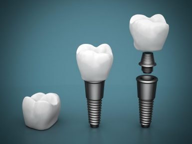 are dental implants the long-term solutions to your missing teeth