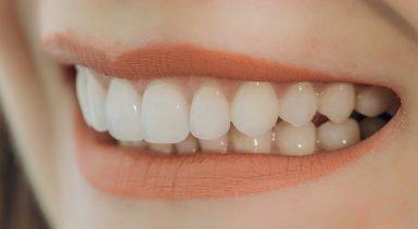 cavities with dental veneers hoppers crossing