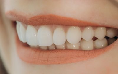 Dentist Hoppers Crossing Answers: Will I Ever Get Cavities with Dental Veneers?