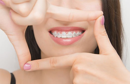 braces cleaning tips hoppers crossing