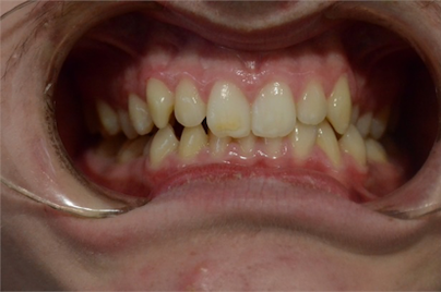 orthodontics case 5 image 3 dentist hoppers crossing