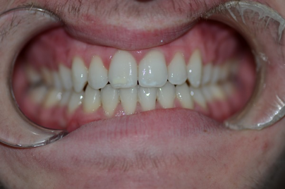 orthodontics case 5 image 4 dentist hoppers crossing