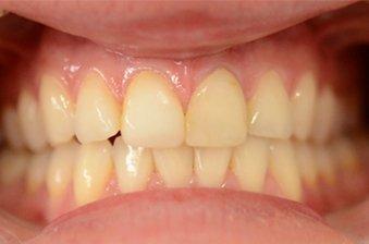 smile designing case 1 image 1 dentist hoppers crossing