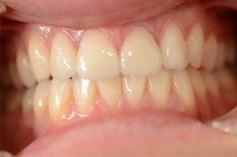 smile designing case 1 image 2 dentist hoppers crossing
