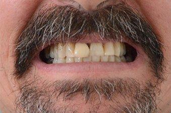 smile designing case 2 image 1 dentist hoppers crossing