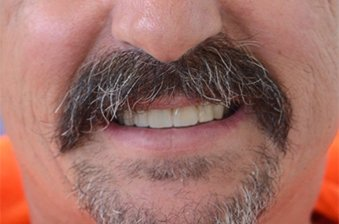 smile designing case 2 image 2 dentist hoppers crossing