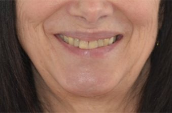 smile designing case 3 image 1 dentist hoppers crossing