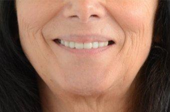 smile designing case 3 image 2 dentist hoppers crossing