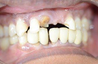 smile designing case 4 image 1 dentist hoppers crossing