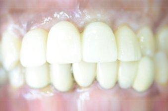 smile designing case 4 image 2 dentist hoppers crossing