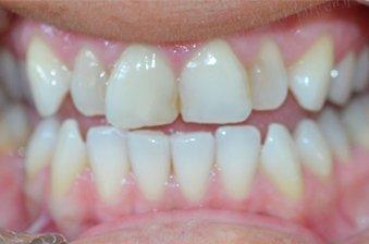 smile designing case 5 image 1 dentist hoppers crossing