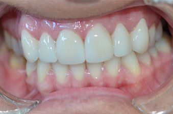 smile designing case 5 image 2 dentist hoppers crossing