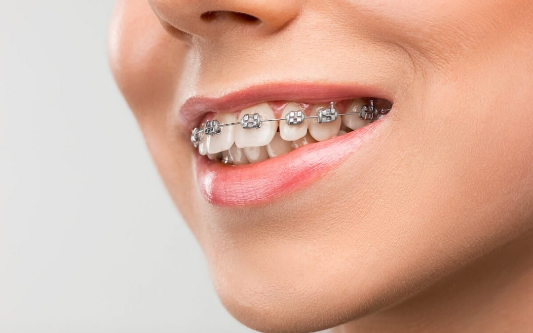 The Importance of Correcting your Overbite from Sayers Dental Aesthetics & Implants